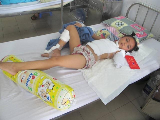 Sau tai nạn giao thông, cháu Minh Thư bị đa chấn thương đang được điều trị tại Bệnh viện Đà Nẵng