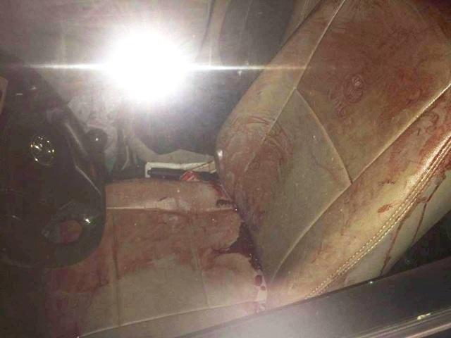 Ghế ngồi của chiếc taxi dính nhiều vết máu của nạn nhân. (Ảnh: CTV)