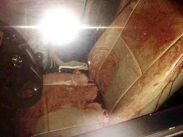 Vết máu tài xế taxi dính trên ghế xe. (Ảnh CTV)