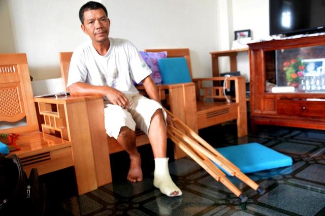 Ông Mẫn bị cán bộ đội trật tự đô thị phường Minh An đánh gãy ngón chân