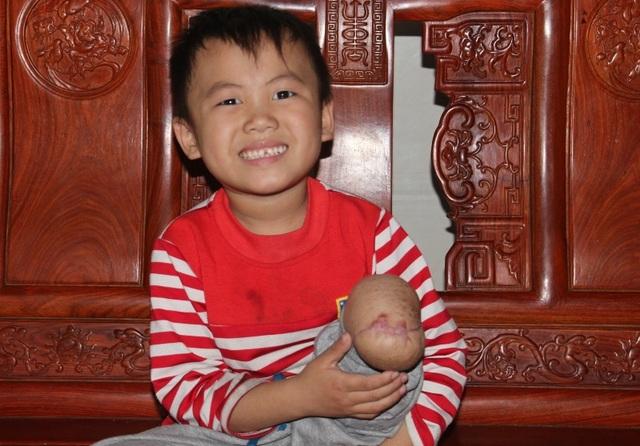 Vụ cột viễn thông đè nát chân cháu bé 5 tuổi: Có thể truy cứu trách nhiệm hình sự? - 3