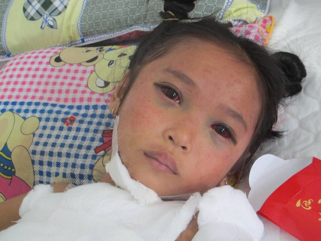 Ánh mắt buồn của cô bé 8 tuổi khi vừa phải trải qua một cú sốc quá lớn