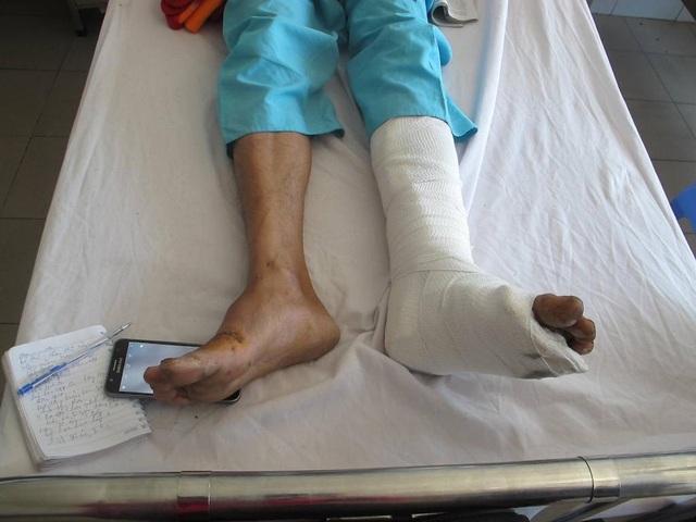 Anh Thành cũng bị thương nặng sau vụ tai nạn giao thông