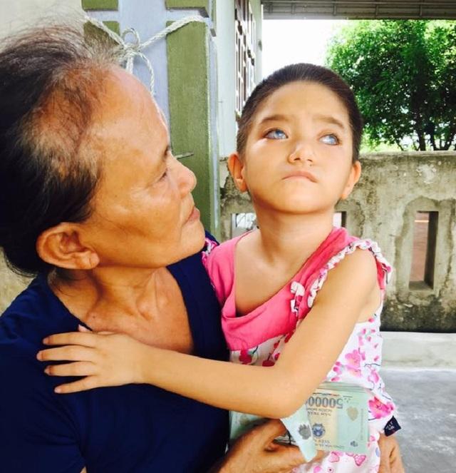 Để chữa được mắt cho cô bé 6 tuổi, gia đình sẽ còn tốn rất nhiều tiền