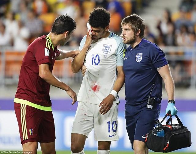 Solanke đã đổ máu ở cuối trận, sau pha va chạm với hậu vệ Venezuela