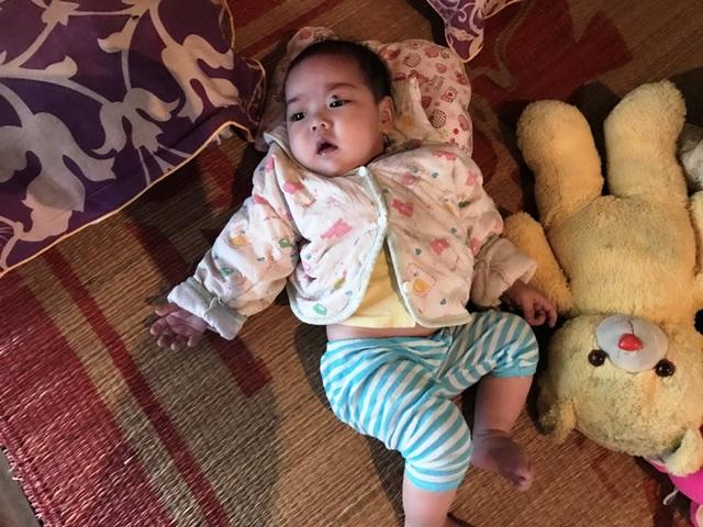 Mới 7 tháng tuổi bé Hà đã phải chịu bao đau đớn về bệnh tim