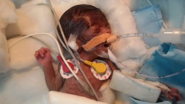 """Em bé """"bé nhất hành tinh"""" được phẫu thuật tim thành công - 1"""