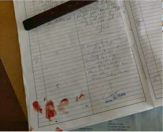 Bệnh án còn nguyên vết máu của BS D. vì bị người nhà bệnh nhi hành hung, đập cốc thủy tinh vào đầu.