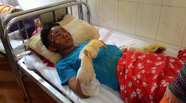 Nạn nhân bị bỏng khí gas đang điều trị tại Bệnh viện đa khoa huyện Bắc Hà.
