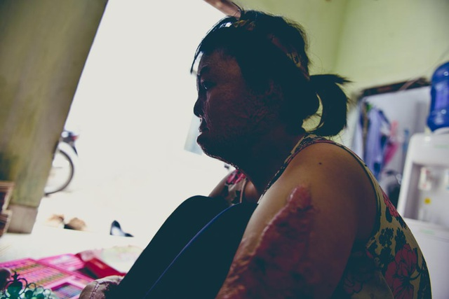 Trải qua 6 cuộc phẫu thuật trong đau đớn, đến nay Dung mới có được hình hài hiện tại.