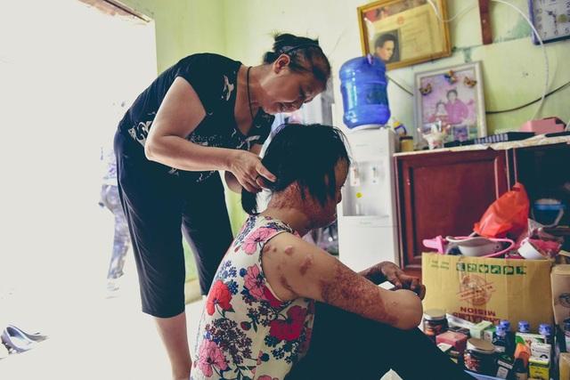 Mọi công việc, sinh hoạt hàng ngày của Dung phụ thuộc hoàn toàn vào người mẹ năm nay đã hơn 60 tuổi.