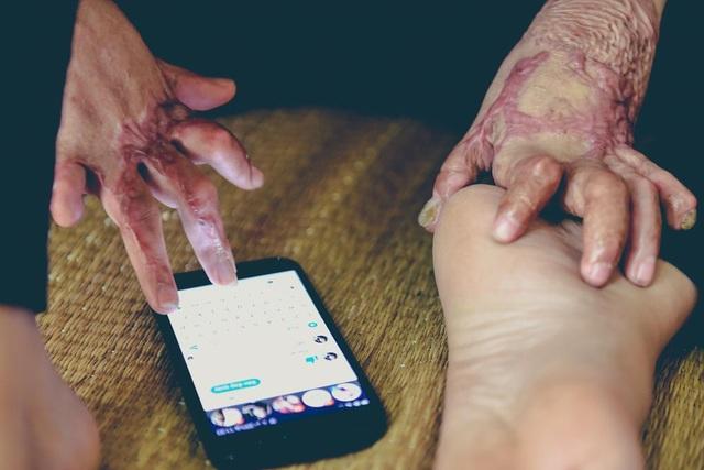 Gần đây, Dung cũng học cách bán hàng trên mạng để mẹ mình bớt gánh nặng kinh tế.