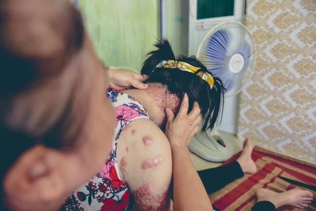 Khi nhập viện cô được các bác sỹ tiên đoán chỉ có 1% cơ hội sống sót.
