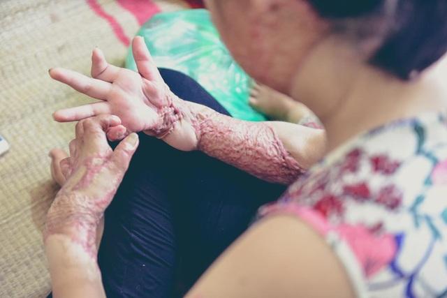 Sau vụ bỏng, khuôn mặt cô bị đốt cháy đến biến dạng, đôi tay co quắp chằng chịt vết sẹo.