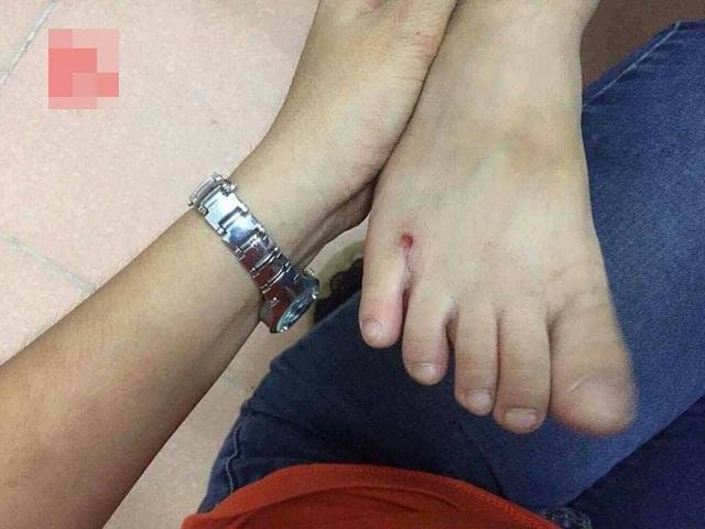 Vết bầm trên chân cháu bé