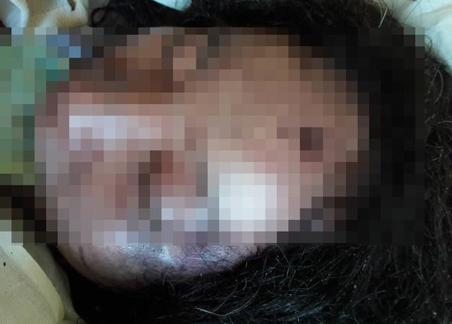 Chị Bình chết với nhiều vết bầm trên mặt nghi do bị chồng đánh.