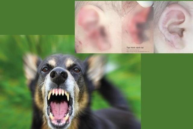 Chó cắn nát tai bé 18 tháng tuổi - 1