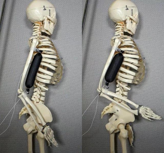 Cơ bắp nhân tạo khi hoạt động. Nó hoạt động giống như một bắp tay để nâng phần cánh tay của bộ xương lên một góc 90 độ.