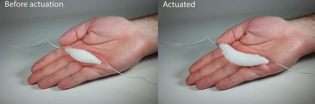 Cơ bắp ở trạng thái nghỉ ngơi (ảnh bên trái) và trạng thái hoạt động (bị co lại).