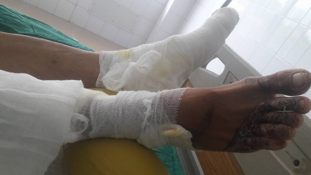 Hiện tại vùng bụng, chân vẫn đang còn dấu hiệu hoại tử nặng phải điều trị kháng sinh liều cao
