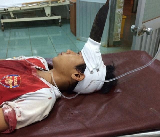 Bị dao dâm giữa trán nhưng bệnh nhân Tùng nhập viện cấp cứu trong tình trạng tỉnh táo