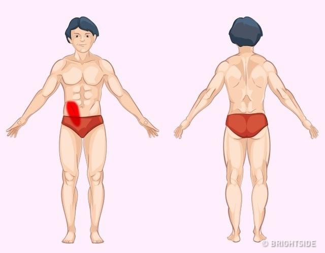 Những loại đau cần đi kiểm tra nội tạng - 4