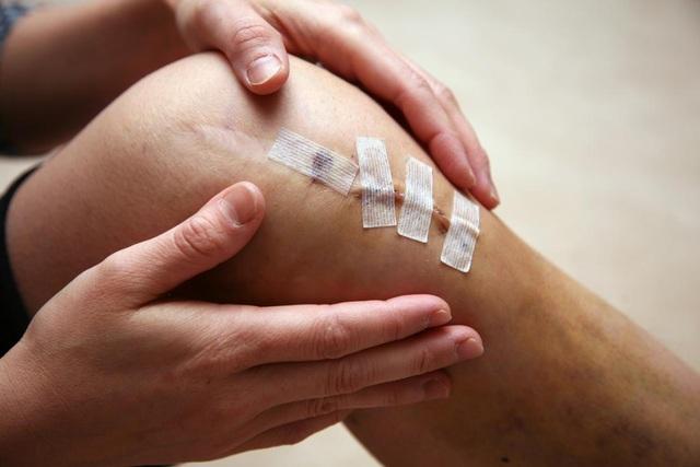 10 chấn thương hay gặp ở đầu gối và cách điều trị - 1
