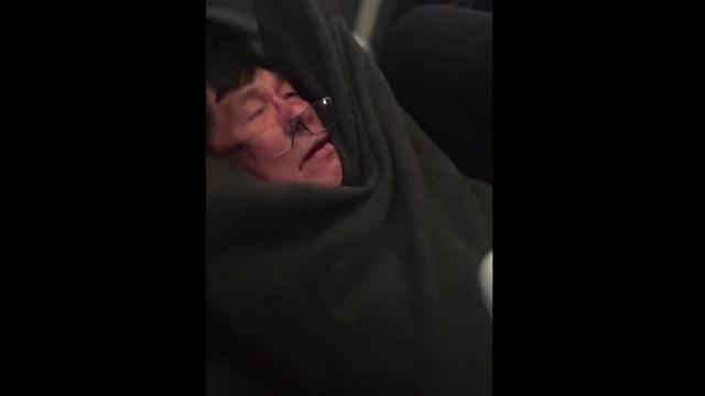 Ông David Dao với gương mặt dính máu khi bị lôi khỏi máy bay một cách thô bạo (Ảnh: Jayse D. Anspach/Twitter)