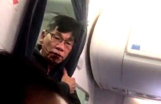 Ông David Dao (Ảnh chụp từ video)