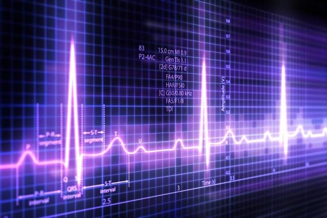 Nâng ngực có thể làm sai lệch kết quả điện tim.