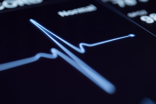 Theo thống kê từ các tổ chức Y tế, mỗi năm trên thế giới có trung bình 20 triệu người chết vì bệnh tim mạch, mà trong đó chiếm đa số bởi đột quỵ - căn bệnh khiến nhiều người khiếp hãi.