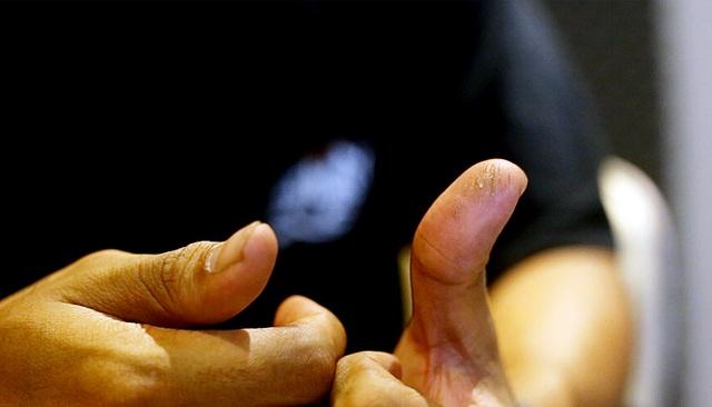 """Cây kim móc là """"thủ phạm"""" gây ra những vết thương lâu dài trên ngón tay của chủ nhân."""