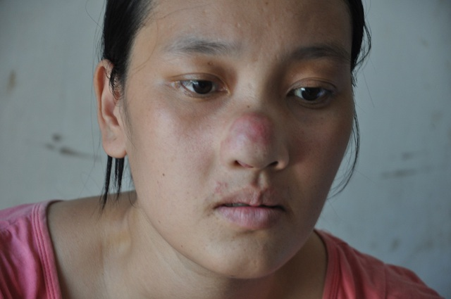 Bị ung thư mũi đã di căn, những ngày trước đây Hương không thể dậy được nhưng sau khi dùng thuốc em đã trở dậy được.