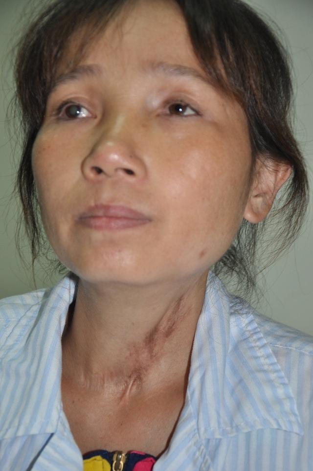 Ngoài căn bệnh đang mang, chị Như còn bị dò thực quản và đã phải mổ đi mổ lại hơn 10 lần.