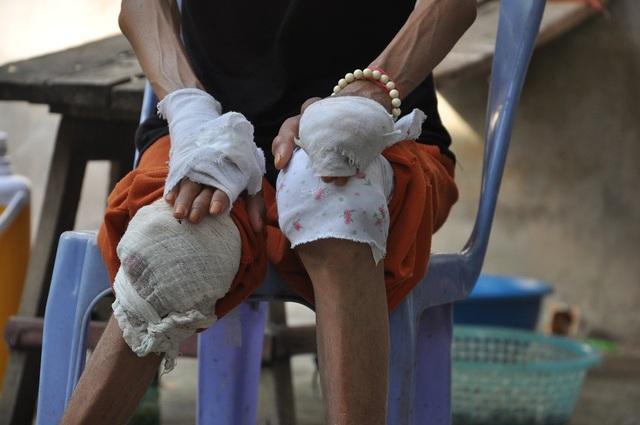 Không có tiền đi viện tiếp, chị Dung dùng cách bó lá để các khớp xương đỡ đau.