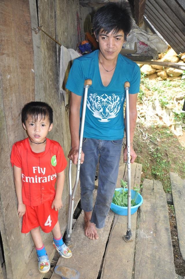Vợ bỏ đi đã 4 năm bỏ mặc chồng cụt chân và đứa con bệnh tật yếu đau.
