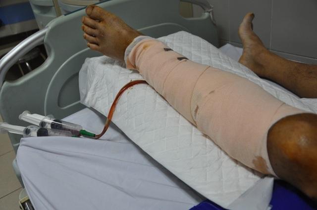 Chân trái của anh đã trải qua 4 lần mổ và hiện dịch vàng chảy ra nhiều.
