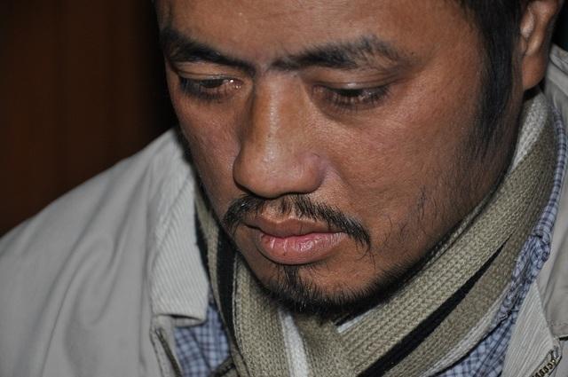 Anh Tuấn phát hiện u mạc treo đang ở giai đoạn 4 từ năm 2015 và đã trải qua 8 đợt xạ trị.
