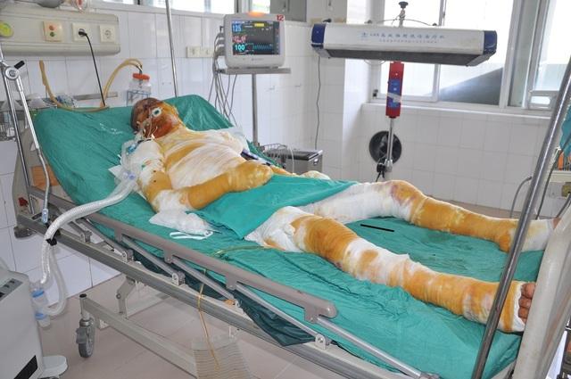 Em Phong bị bỏng khi đang làm hàn xì nên phải chuyển lên cấp cứu tại Viện bỏng quốc gia.