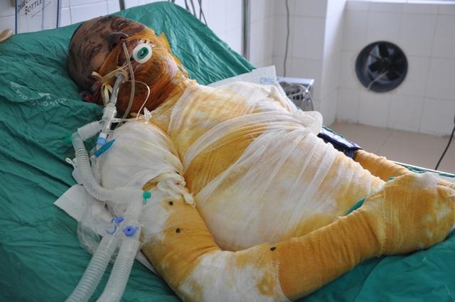Từ ngày vào viện em phải thở máy với chi phí từ 5- 7 triệu đồng/ ngày.