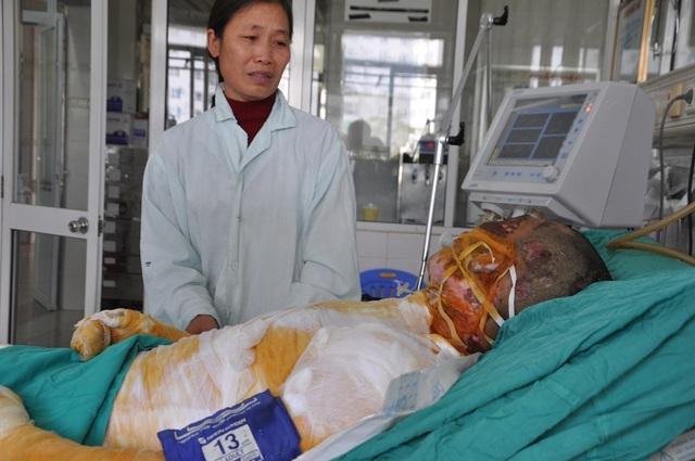 Với diện tích 70% bỏng toàn cơ thể, tính mạng của Phong hiện rất nguy kịch.