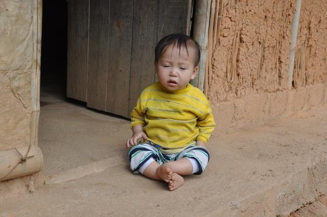Bé Lý Triệu Hồng Sơn (hơn 1 tuổi) phát hiện tinh hoàn lạc chỗ và có chỉ định phẫu thuật.