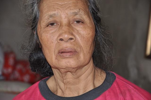 Vợ bác Tăng bị tim nặng và phải phẫu thuật tại bệnh viện Bạch Mai