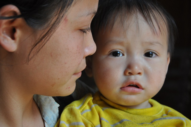 Nhìn con mỗi ngày 1 lớn, Hằng càng sốt ruột vì con không được phẫu thuật sẽ có nhiều biến chứng xảy ra.