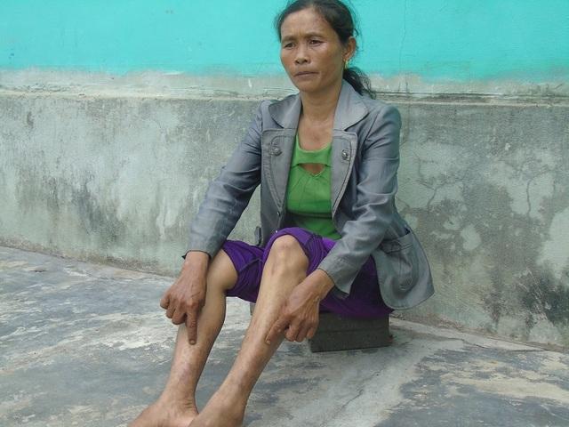Quảng Bình: Dân kêu trời vì sống giữa hai nhà máy gây ô nhiễm môi trường! - 6