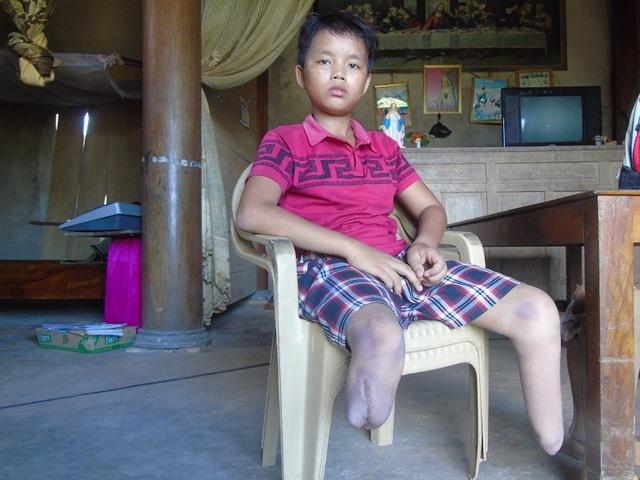 Vụ tai nạn năm 2014 đã khiến Việt mất đi đôi chân