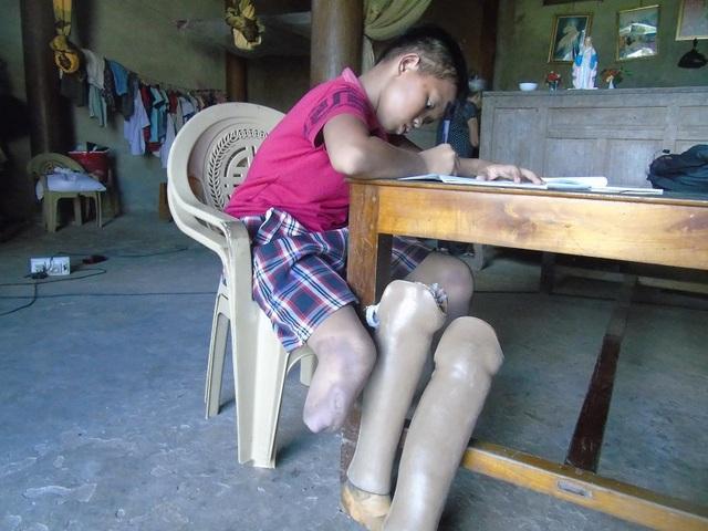 Với đôi chân giả, Việt vẫn luôn nỗ lực bước đi, tiếp tục vươn lên trong cuộc sống