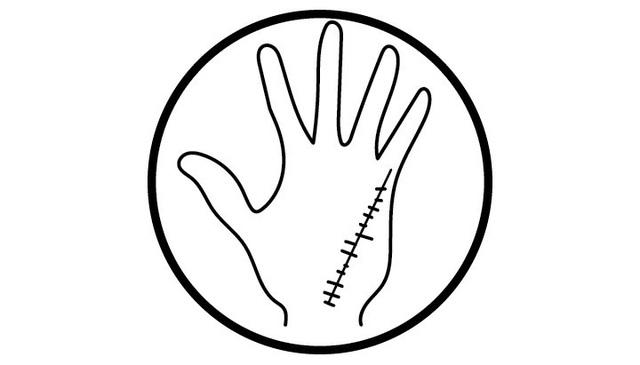 Có đường này trên lòng bàn tay, nghĩa là sức khỏe của bạn đang bị tổn thương - 2