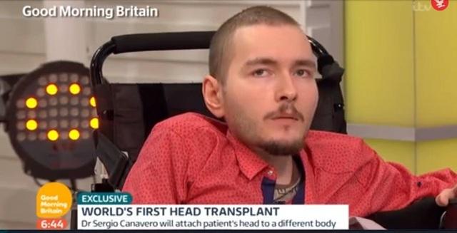Valery Spiridonov tình nguyện tham gia ca phẫu thuật ghép đầu người đầu tiên trên thế giới.