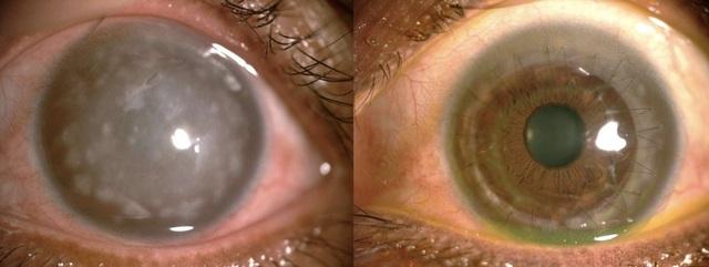 Bên trái là mắt bệnh nhân trước ghép và bên phải là mắt bệnh nhân sau khi ghép giác mạc do BS Thoa hiến tặng (Ảnh: TS.BS Phạm Ngọc Đông cung cấp)